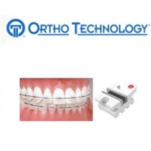 Ortho Technology Brackets – Aesthetic