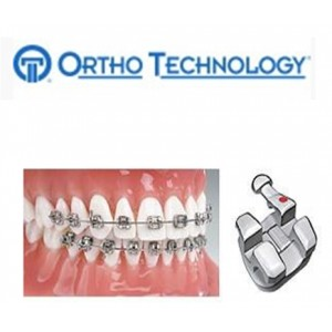 Ortho Technology Brackets   Metal / Marquis Brackets Stainless Steel Bracket System