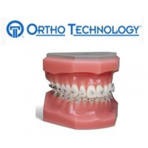 Ortho Technology Brackets – Aesthetic / Sensation Active Ceramic Slb Bracket System