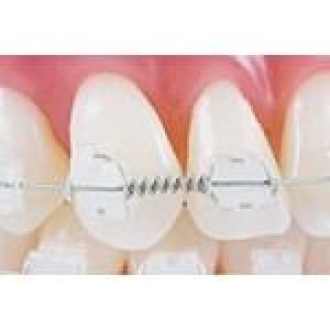 Ortho Technology Wire Products / Tooth Tone Coated Archwire And Accessories